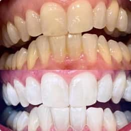 Thomas's teeth before and after whitening treatment