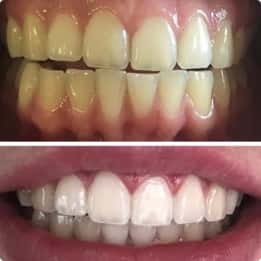 Teeth after whitening session with our Melbourne dentist