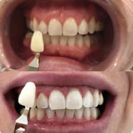 Kassandra's teeth after treatment with our Melbourne clinic