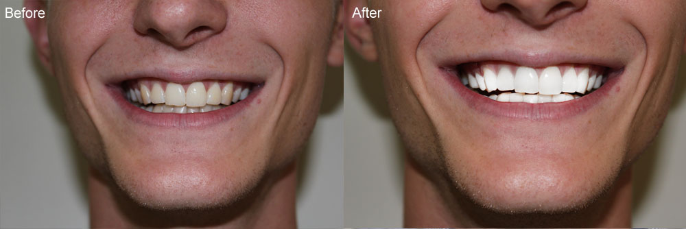 Smilebar teeth bleaching sydney
